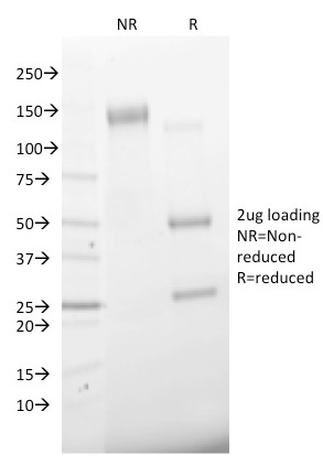 SDS-PAGE Analysis Purified CD68 Mouse Monoclonal Antibody (C68/2501).Confirmation of Integrity and Purity of Antibody.