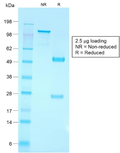 SDS-PAGE Analysis Purified CD79a Rabbit Recombinant Monoclonal Antibody (IGA/1790R).Confirmation of Purity and Integrity of Antibody.