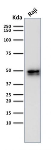 Western Blot Analysis of Raji Cell Lysate using CD79a Rabbit Recombinant Monoclonal Antibody (IGA/1790).