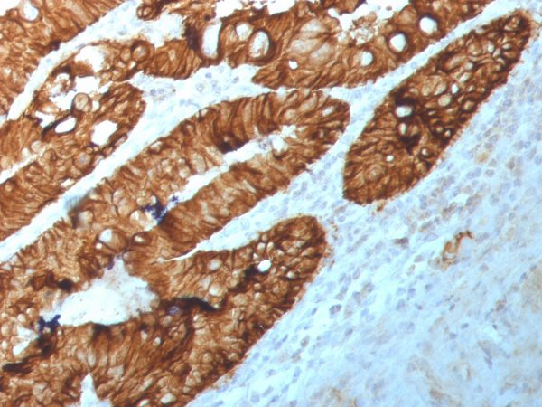 Anti-M+R SingleStep Poly HRP conjugated secondary staining of human FFPE rectal tissue (primary is anti-EpCAM antibody clone 2041).