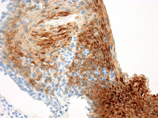 Immunohistochemical staining of Cytokeratin 13  of human FFPE tissue followed by incubation with HRP labeled secondary and development with DAB substrate.