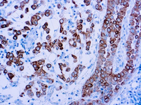Immunohistochemical staining of Cytokeratin 5  of human FFPE tissue followed by incubation with HRP labeled secondary and development with DAB substrate.