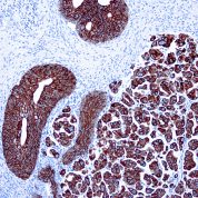 Immunohistochemical staining of Cytokeratin 7  of human FFPE tissue followed by incubation with HRP labeled secondary and development with DAB substrate.