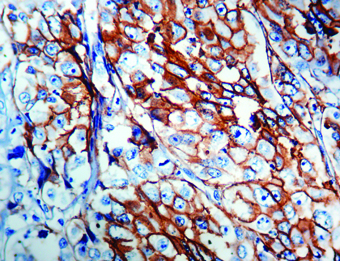Immunohistochemical staining of Epithelial Antigen (EpCAM)  of human FFPE tissue followed by incubation with HRP labeled secondary and development with DAB substrate.