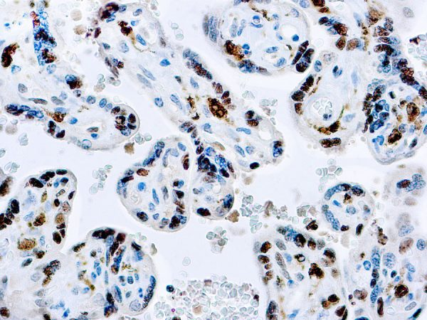 Immunohistochemical staining of Factor XIII-A  of human FFPE tissue followed by incubation with HRP labeled secondary and development with DAB substrate.
