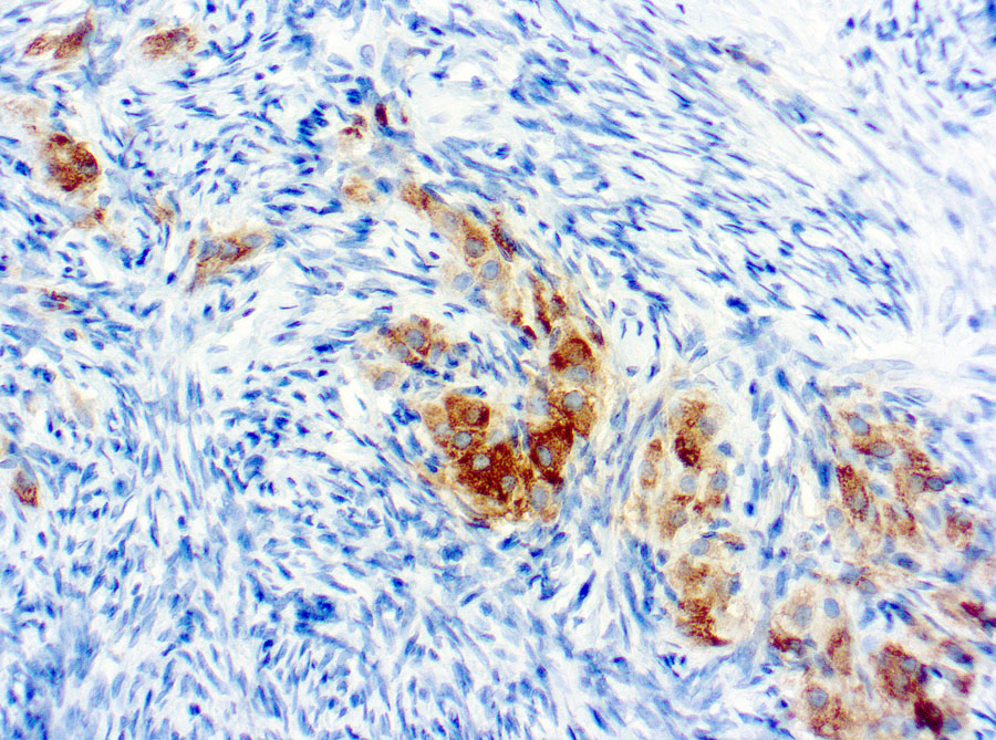 Immunohistochemical staining of Inhibin  of human FFPE tissue followed by incubation with HRP labeled secondary and development with DAB substrate.