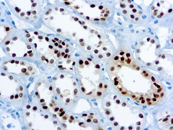 Immunohistochemical staining of Pax-8  of human FFPE tissue followed by incubation with HRP labeled secondary and development with DAB substrate.