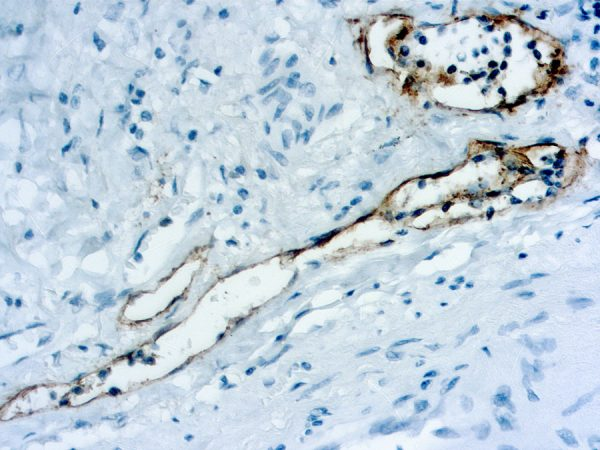 Immunohistochemical staining of Podoplanin  of human FFPE tissue followed by incubation with HRP labeled secondary and development with DAB substrate.