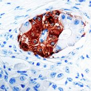 Immunohistochemical staining of Synaptophysin  of human FFPE tissue followed by incubation with HRP labeled secondary and development with DAB substrate.