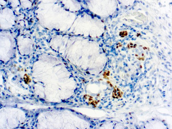Immunohistochemical staining of TdT  of human FFPE tissue followed by incubation with HRP labeled secondary and development with DAB substrate.
