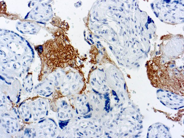 Immunohistochemical staining of Thrombospondin  of human FFPE tissue followed by incubation with HRP labeled secondary and development with DAB substrate.
