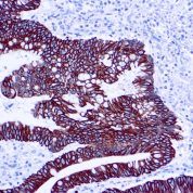 Immunohistochemical staining of Cytokeratin 8/18  of human FFPE tissue followed by incubation with HRP labeled secondary and development with DAB substrate.