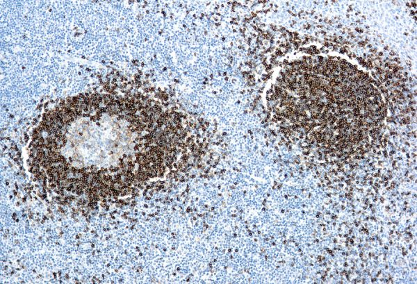 Immunohistochemical staining of Hairy Cell Leukemia  of human FFPE tissue followed by incubation with HRP labeled secondary and development with DAB substrate.