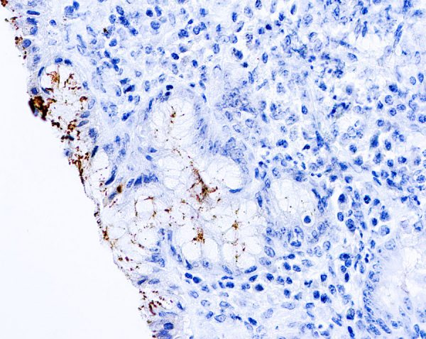 Immunohistochemical staining of Helicobacter Pylori  of human FFPE tissue followed by incubation with HRP labeled secondary and development with DAB substrate.