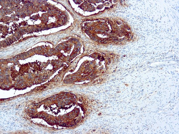 Immunohistochemical staining of Carcinoembryonic  of human FFPE tissue followed by incubation with HRP labeled secondary and development with DAB substrate.