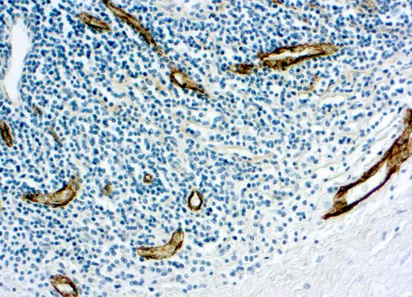 Immunohistochemical staining of Factor VIII Related /Von Willebrand Factor  of human FFPE tissue followed by incubation with HRP labeled secondary and development with DAB substrate.
