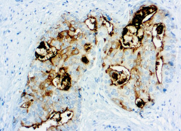 Immunohistochemical staining of Prostate Specific Membrane Antigen  of human FFPE tissue followed by incubation with HRP labeled secondary and development with DAB substrate.