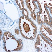 Immunohistochemical staining of Prostate Specific Antigen  of human FFPE tissue followed by incubation with HRP labeled secondary and development with DAB substrate.