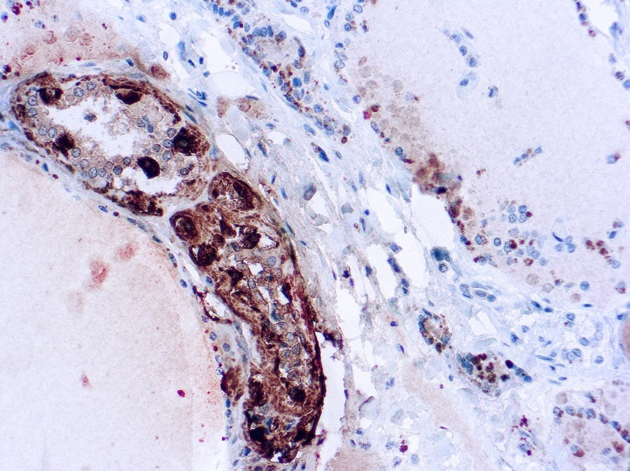 Immunohistochemical staining of Calcitonin  of human FFPE tissue followed by incubation with HRP labeled secondary and development with DAB substrate.