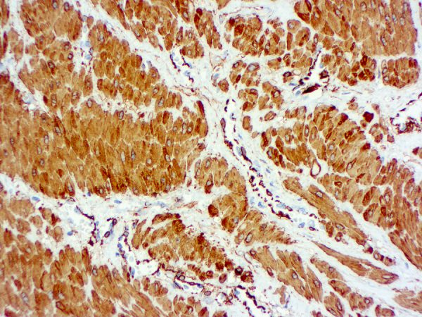 Immunohistochemical staining of Actin, Smooth Muscle  of human FFPE tissue followed by incubation with HRP labeled secondary and development with DAB substrate.